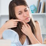 How to Get Rid of Pimple Fast at home