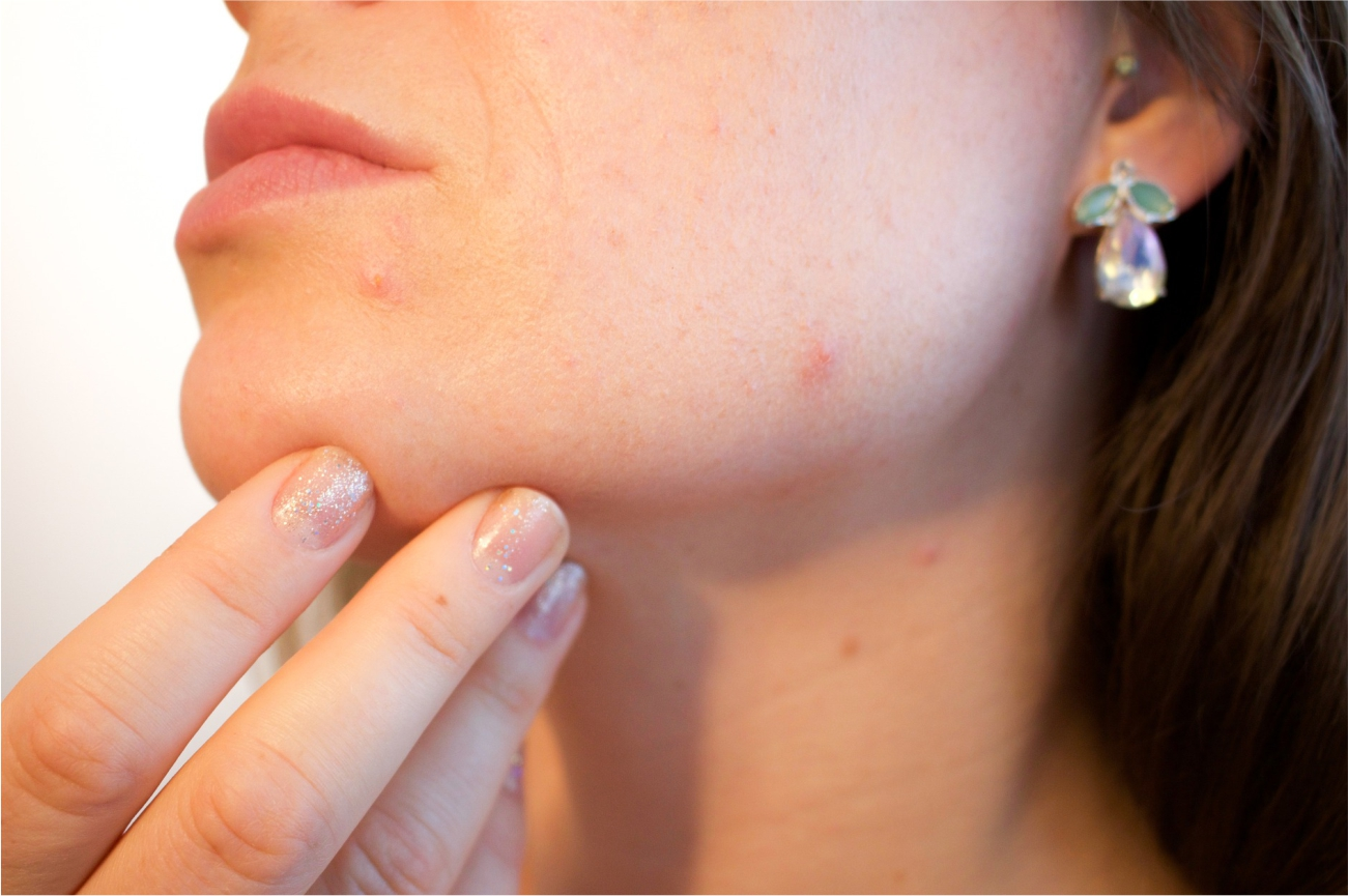 How to Get Rid of Pimple Fast