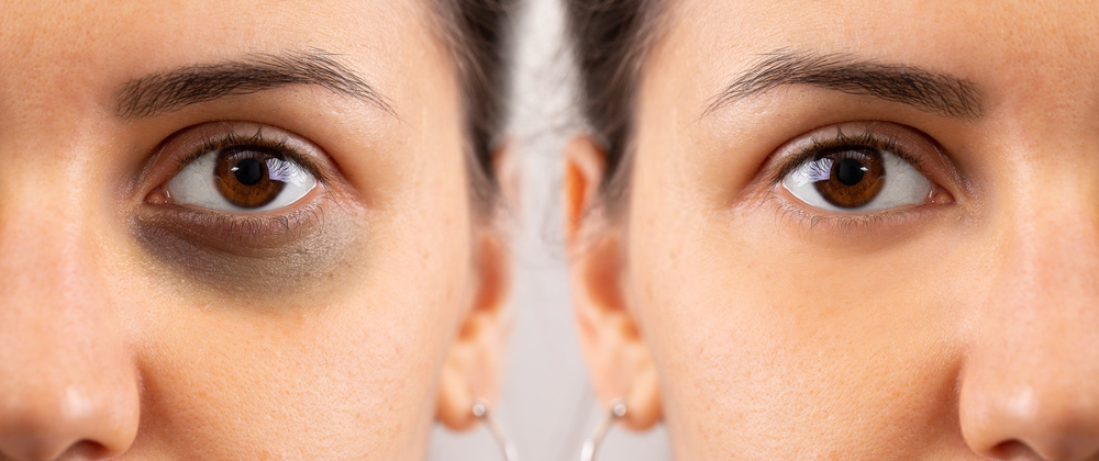 Dark Circles Under Eyes Cause Precautions and How to remove